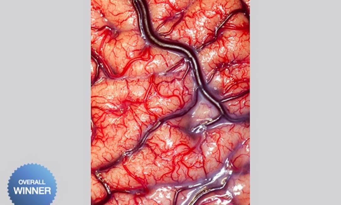 A fotografia mostra a superfície de um cérebro humano pertencente a um paciente epiléptico. Na imagem, as artérias vermelhas brilhantes que suprem o cérebro com nutrientes e oxigênio e as veias roxas que removem o sangue venoso Robert Ludlow