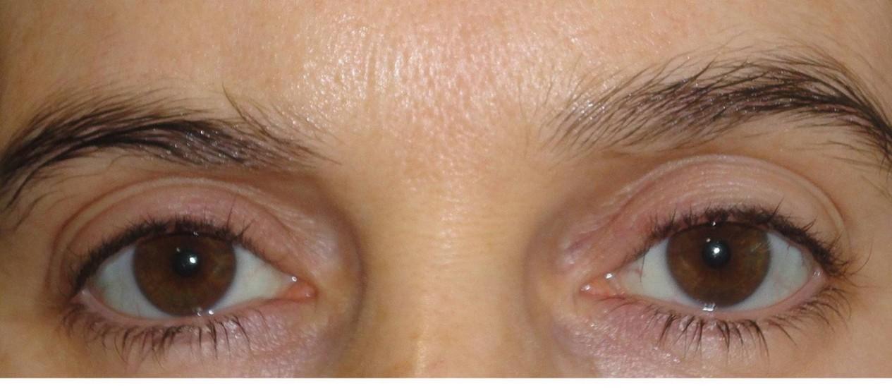 ESTUDOS COM as dilataçõesde pupilas são menos invasivos do que os métodos com genitais Foto: Divulgação