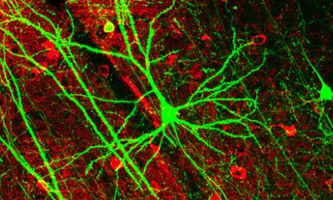 Sistema nervoso gera ondas que mantêm a ereção de órgão sexual Foto: Divulgação