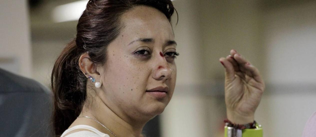 A turista colombiana Catalina Roncaces teve ferimentos no rosto Foto: Marcelo Piu em 19/12/2012 / O Globo