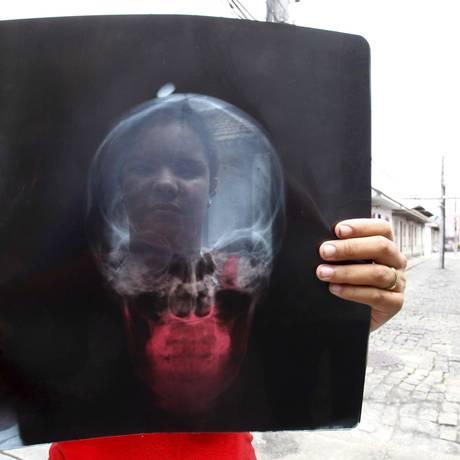 Jéssica Vasconcellos mostra a radiografia em que aparece a bala alojada em sua cabeça Foto: Pablo Jacob / O Globo