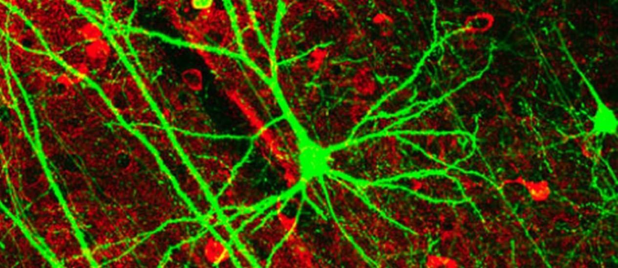 Ilustração de neurônios: cientistas descobrem como células do próprio corpo atacam a baínha de mielina, estrutura que garante comunicação entre as células nervosas Foto: Agência O Globo