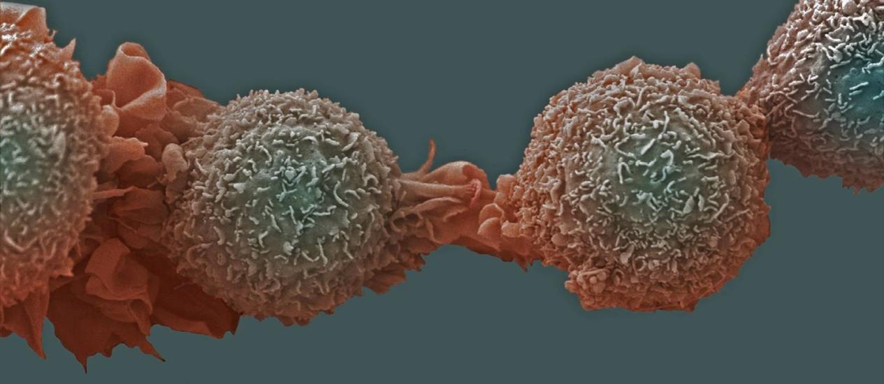 Células cancerosas no pulmão Foto: Latinstock