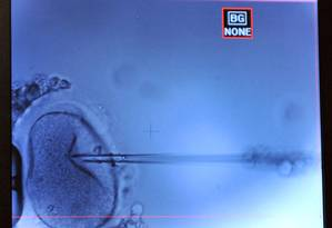 Técnica de fertilização in vitro consiste em implantar embrião com DNA mitocondrial de uma terceira pessoa Foto: AFP