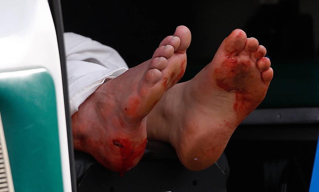 Um dos feridos é atendido numa ambulância; no detalhe, seus pés, cortados por estilhaços de vidro Foto: Jim Rogash / AFP