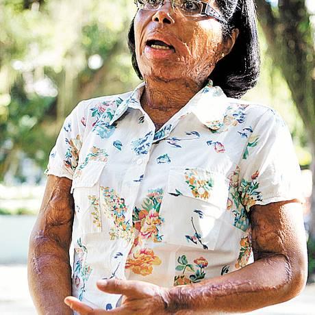 Rosangela teve o corpo queimado pelo ex-marido Foto: Foto de Gustavo Stephan