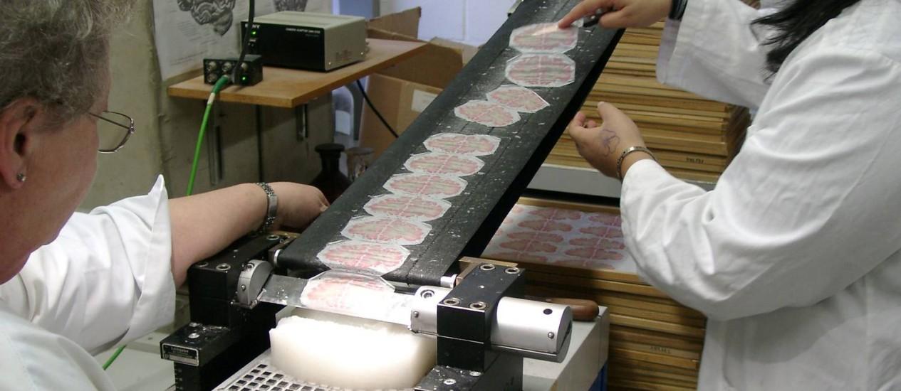 Trabalho delicado: os pesquisadores usaram um faca especial para cortar o cérebro da doadora em fatias finas que depois foram digitalizadas para construir o modelo Foto: AP/Katrin Amunts, Karl Zilles e Alan Evans