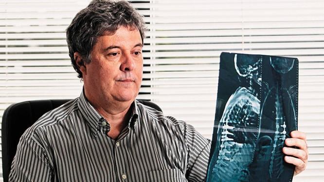 Modulando o cérebro. O neurocirurgião Eduardo Barreto conduziu a cirurgia inédita no Brasil Foto: Guilherme leporace / Guilherme Leporace