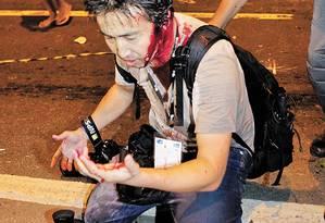 Fotógrafo japonês da France Presse foi ferido por golpe de cassetete de policial durante protesto - Foto: UANDERSON FERNANDES / AFP