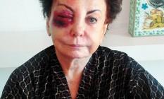 Atriz ficou com o olho roxo após tropeçar em pedras portuguesas - Foto: Arquivo Pessoal