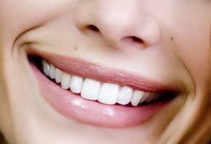 Sorriso: chineses desenvolvem nova técnica para a recuperação de dentes Foto: Latinstock