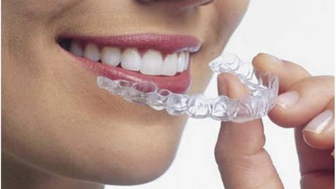 Sorriso De Farmacia Dentistas Querem Restringir Venda De