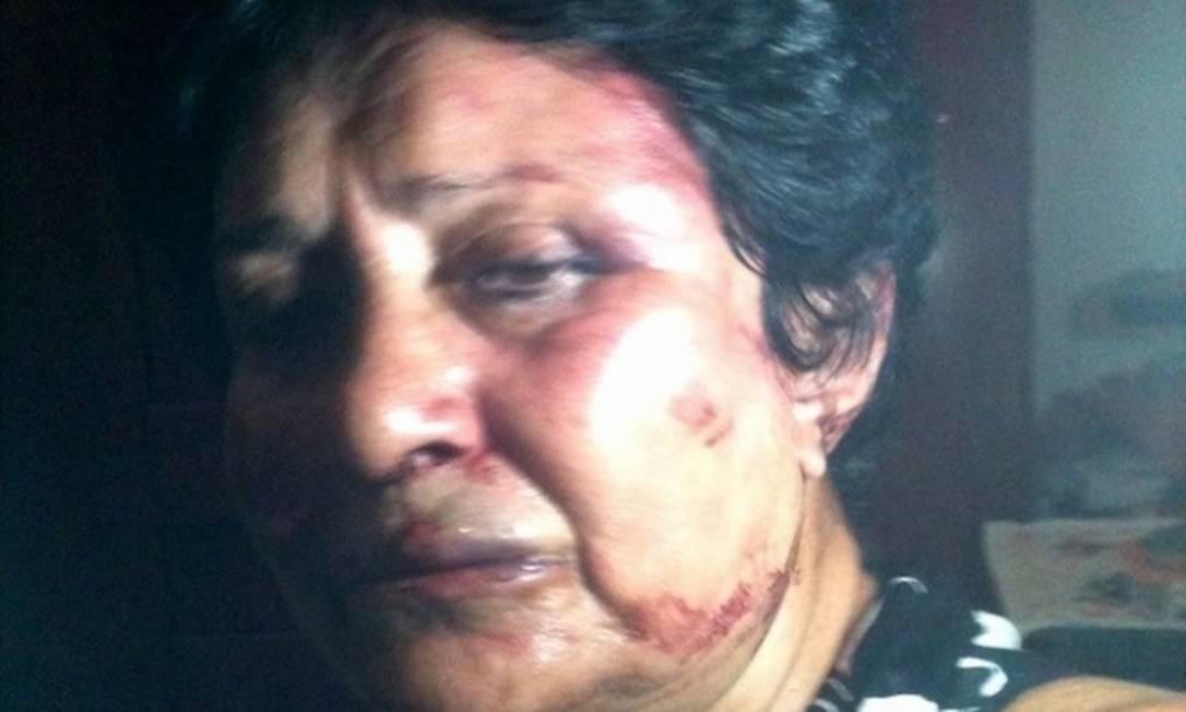 Ana Luisa Rubio em foto tirada após ter sido espancada por vizinhos, em Havana Foto: REPRODUÇÃO