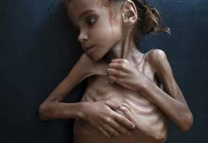 Amal Hussain, de 7 anos, que sofria de severa desnutrição: morte dias depois da foto chocante Foto: TYLER HICKS / NYT/18-10-18