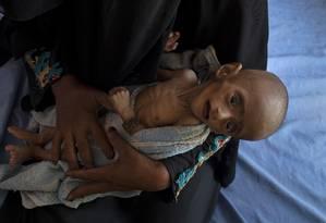 Com cinco meses de idade, Ahmed Ibrahim al Junid sofre de severa desnutrição Foto: TYLER HICKS/NYT