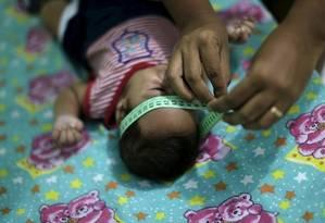 Brasil já tem mais de mil casos de microcefalia confirmados Foto: Agência O Globo