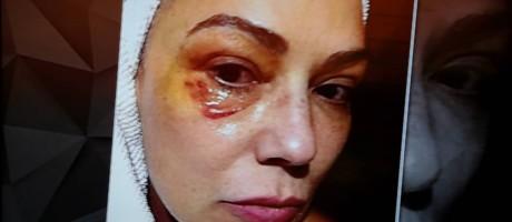 Hematoma no rosto da atriz. Foto: Reprodução TV Globo