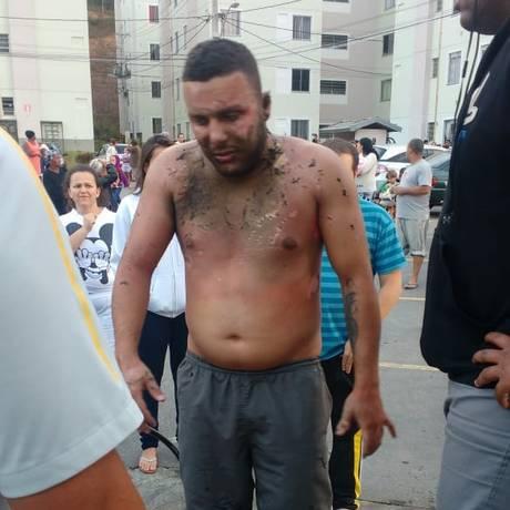 A vítima Jefferson Quintanilha teve a parte superior do corpo queimada Foto: Divulgação / PM