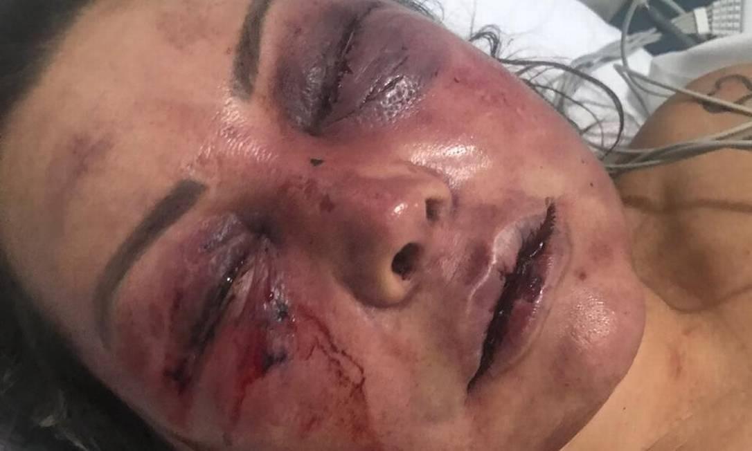 A paisagista Elaine Caparróz, 55 anos, foi agredida por quatro horas dentro de seu apartamento, na Barra da Tijuca, na madrugada de sábado, durante seu primeiro encontro com o estudante de Direito Vinícius Serra, de 27 anos Foto: Arquivo pessoal
