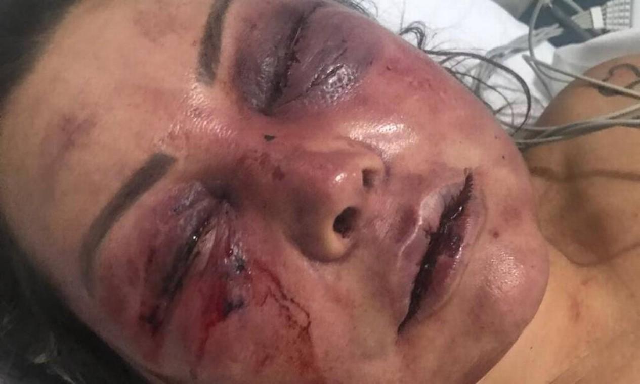 A paisagista Elaine Caparróz foi agredida por quatro horas dentro de seu apartamento, na Barra da Tijuca, na madrugada do dia 16 de fevereiro, durante seu primeiro encontro com o estudante de Direito Vinícius Serra Foto: Arquivo pessoal
