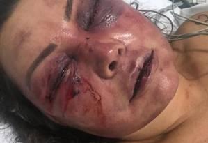A paisagista Elaine Caparróz, 55 anos, foi agredida por quatro horas dentro de seu apartamento, na Barra da Tijuca, na madrugada do dia 16 de fevereiro, durante seu primeiro encontro com o estudante de Direito Vinícius Serra, de 27 anos Foto: Agência O Globo