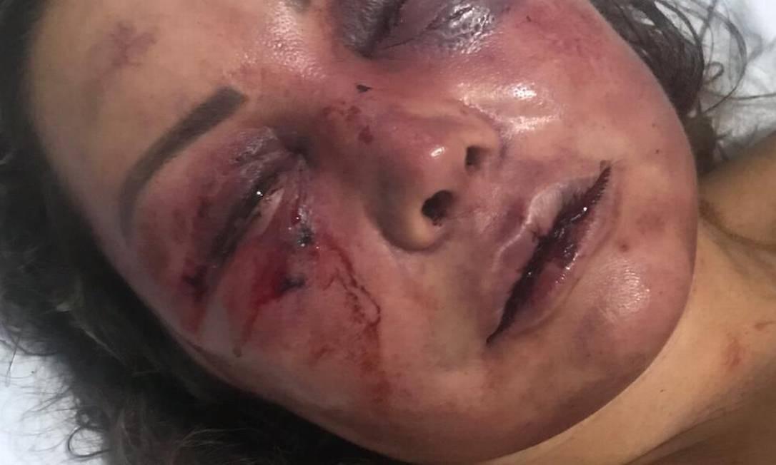 RI Rio de Janeiro (RJ) 18/02/2019 A paisagista Elaine Peres Caparroz é agredida durante quatro horas durante um primeiro encontro com o estudante estudante Vinícius Serra, na Barra da Tijuca. Foto Arquivo Pessoal Foto: Agência O Globo